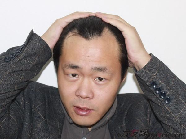 前额头发突出,两边少_额头两边额角头发少需要做植发吗,,大概需要多少钱?-际线高 ...